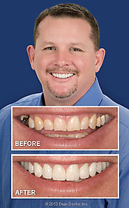 Teeth Whitening - Teeth Whitening Clinics in San Marcos | Find Professional Dentist