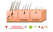 What is DHT & its link with hair loss