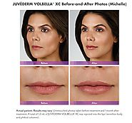 Lips with Lip Fillers at Anderson MedSpa
