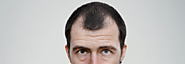 Hair Transplant – An ideal solution for Male Pattern Baldness in London