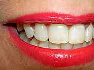 Hesitate no Longer, But Consult Cosmetic Dentistry Eastern Melbourne