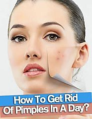 How to Get Rid of Pimples Overnight, Fast and Naturally?