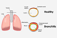 Top 10 Home Remedies For Bronchitis - Bronchitis Treatments