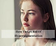 7 Effective Home Remedies To Get Rid Of Hyperpigmentation