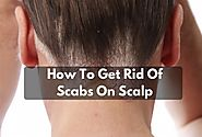 7 Simple Way To Treat Scabs On Scalp - Scabs Scalp Treatment
