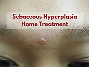 How To Treat Sebaceous Hyperplasia - Sebaceous Hyperplasia Removal