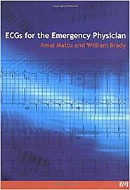 ECG's for the Emergency Physician 1: 9780727916549: Medicine & Health Science Books @ Amazon.com