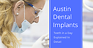 Austin Dental Implants – Teeth in a Day Explained In Detail