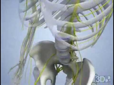 Bulging Degenerative Disc
