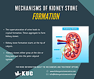Mechanisms Of Kidney Stone Formation - KUC