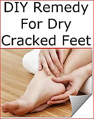 DIY Remedy For Dry Cracked Feet | Listerine Foot Soak