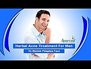 Herbal Acne Treatment for Men to Shrink Pimples Fast