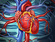 Heart Surgery Cost in India - MedMonks