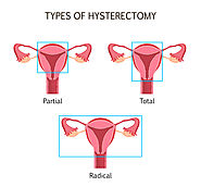 Uterus removal surgery - Best Gynecologist in Mumbai | Gynaecology doctors India