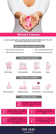 Breast cancer treatment | Types of Breast cancer | Breast cancer Diagnosis | Breast cancer Stages