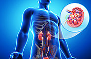 What Is Nephrostomy