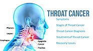 Best Hospital for Throat Cancer Treatment - RGCIRC