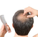 Researchers Re-Grow Hair In Mice, Offering Hope For Hair Loss