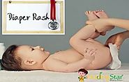 8 Effective Home Remedies for Diaper Rash in Babies | Budding Star