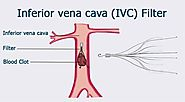 IVC filters and their Post-Medical Complications