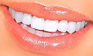 Dental Veneers Treatment in Cancun Mexico