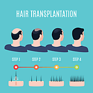 Know more about Hair Transplant Surgery