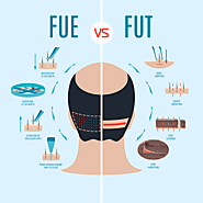 FUE or FUT Which Hair Transplant Procedure is Right for You?