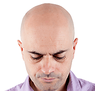 Know How Hair Transplant is Helping Mental Health in Men