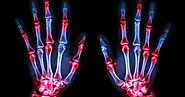 Everything You Should Know About Rheumatoid Arthritis- Symptoms And Possible Cure