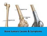 Get Best Bone Tumor Treatment in Delhi - RGCIRC