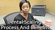 Learn The Benefits Of Dental Scaling With Our Dental Hygienist In Calgary