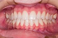 Impacted Tooth (Tooth Impaction): Causes, Signs and Symptoms, Treatment, Diagnosis, Classification