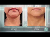 Eliminate Hyperpigmentation | Use This Hyperpigmentation Treatment ~ Get Results ~