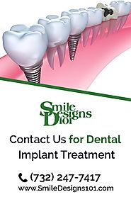 What are the different types of Dental Implant Restorations?