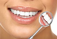 What You Need to Know Before Bleaching Your Teeth