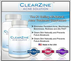 Clearzine: Is it All it's Cracked Up to Be?