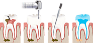 Crown and Roots| Best Dental Clinic in South Delhi | Dentist in South Delhi