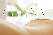 Everything You Want to Know About Chiropractic Care and Acupuncture