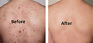 myclinic offer Best Back Acne Treatment - Malaysia