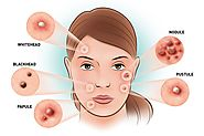 Acne Treatment can Help Get Rid of Acne