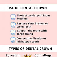 Restore Your Smile With Dental Crown | Brandon Dentist | Visual.ly