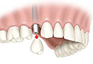 Dental Implant - Affordable Dental Implants in Houston, Texas - ParkWestDentist