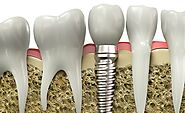 Find the Medical Facilitators for Dental Implants in Cancun