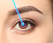 Mistakes that Can Slow Down Recovery after the Best Laser Eye Surgery in Los Angeles