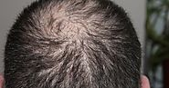 Top 6 Effective Remedies for Hair Loss
