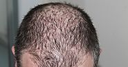 Ways To Treat Male Pattern Baldness