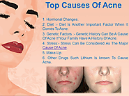 Treating Hormonal Acne – Common Cures for Acne, Great Ways To Fight Pimples