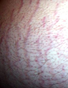 Stretch marks - Wikipedia, the free encyclopedia
