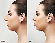 Does Nose Reshaping Really Make People Feel Better About Their Look? – marmmclinic