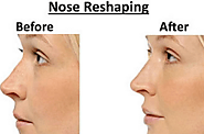 How To Change The Look By Nose Reshaping? – marmmclinic
